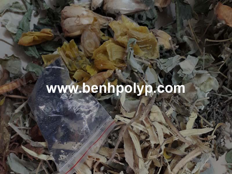 Hình ảnh bài thuốc trị polyp túi mật